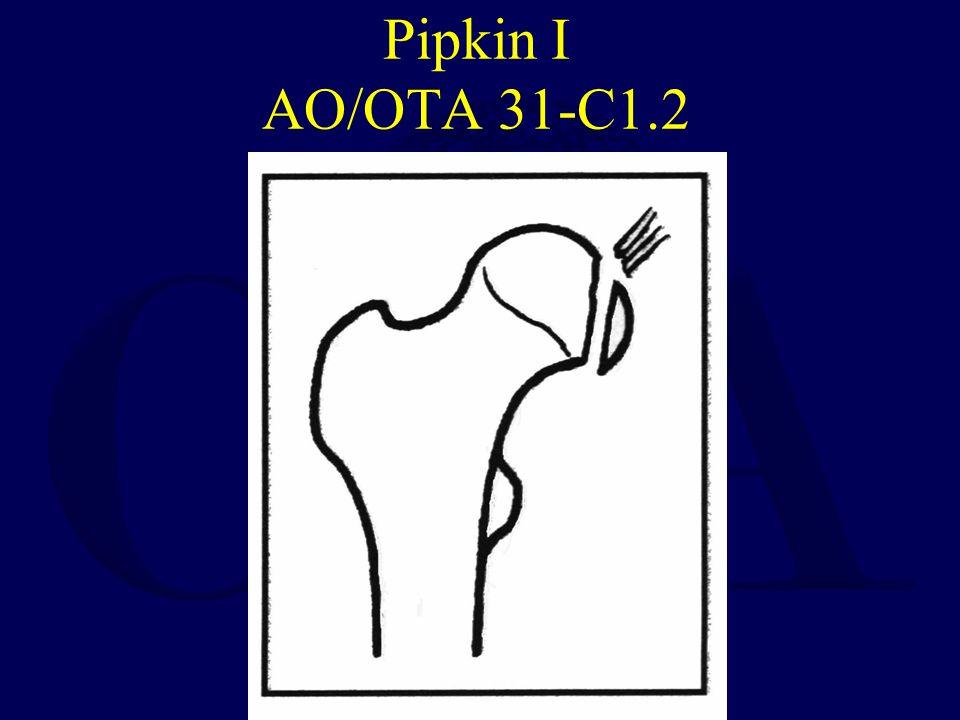 Pipkin I AO/OTA 31-C1.2
