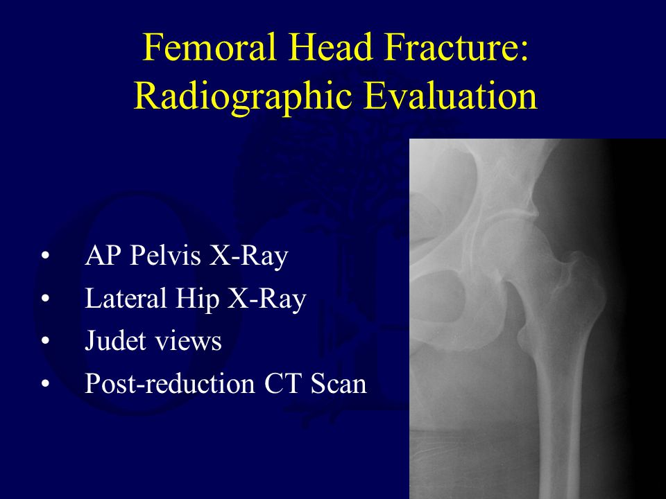 Femoral Head Fracture: Radiographic Evaluation