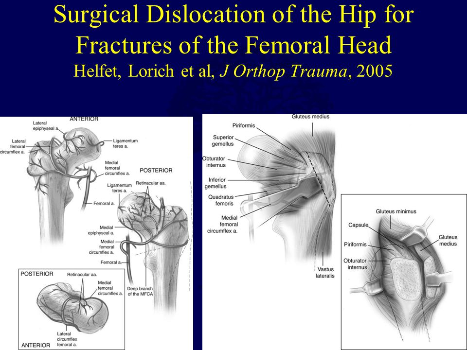 Surgical Dislocation of the Hip for Fractures of the Femoral Head Helfet, Lorich et al, J Orthop Trauma, 2005