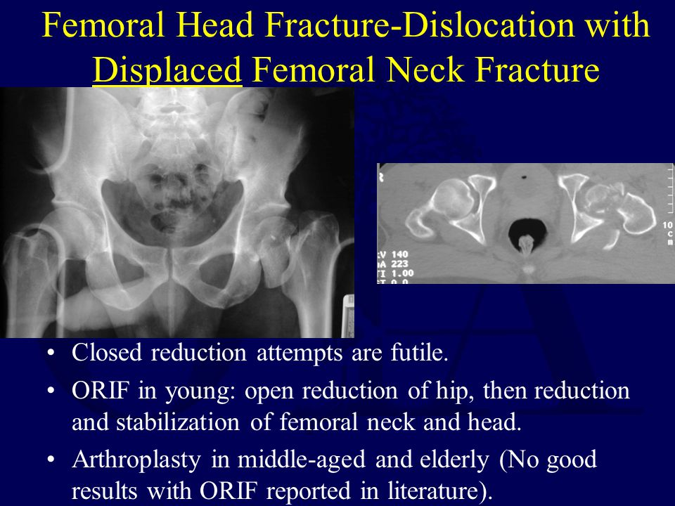 Femoral Head Fracture-Dislocation with Displaced Femoral Neck Fracture