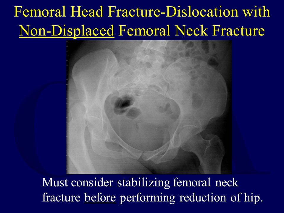 Femoral Head Fracture-Dislocation with Non-Displaced Femoral Neck Fracture