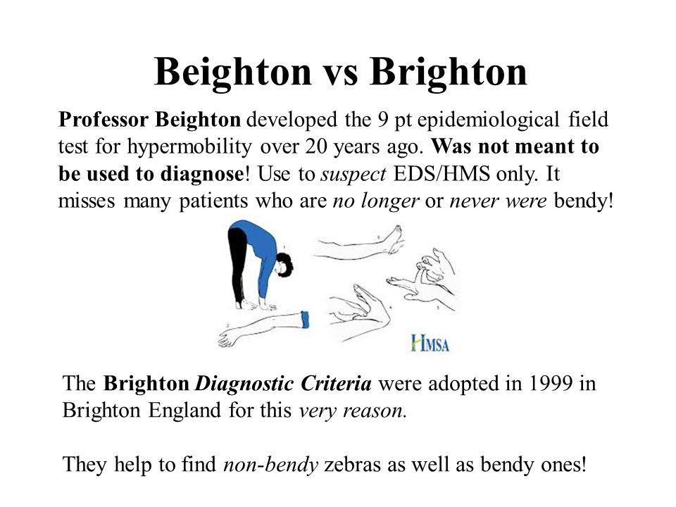 Beighton vs Brighton