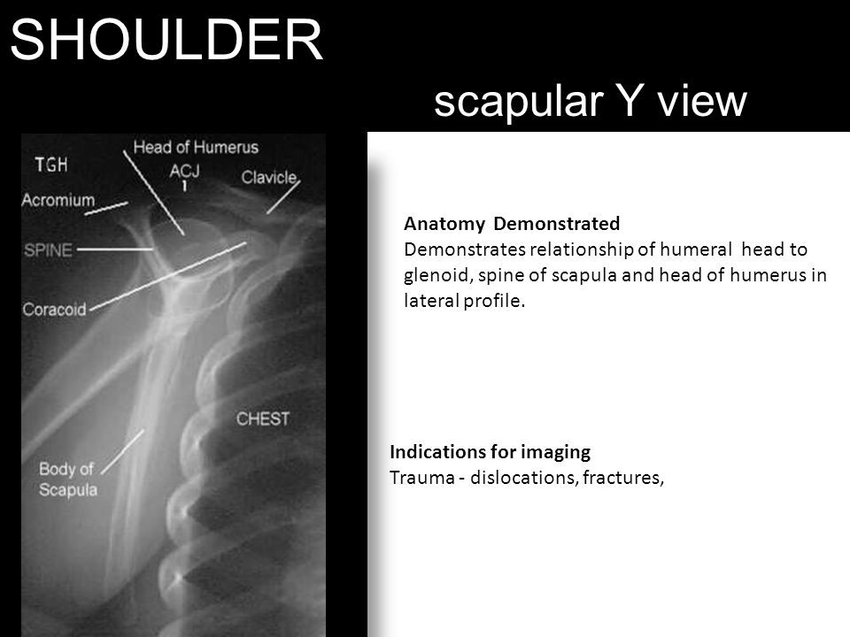 SHOULDER scapular Y view