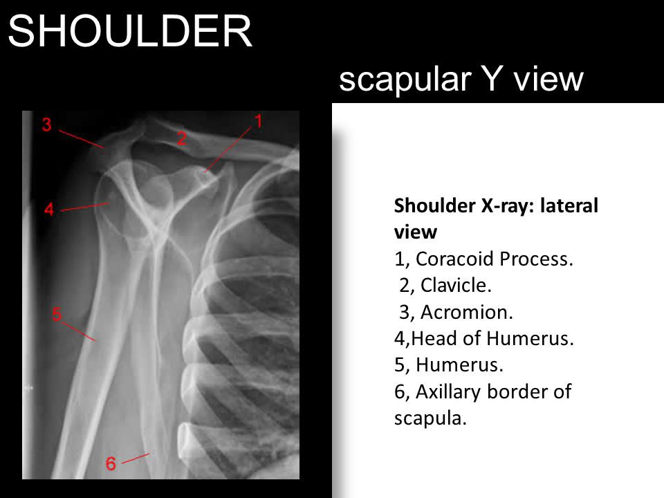 SHOULDER scapular Y view Shoulder X-ray: lateral view