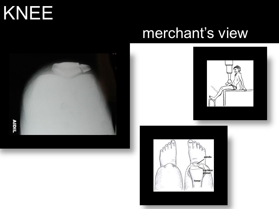 KNEE merchant's view Merchant's- for dislocated patella.