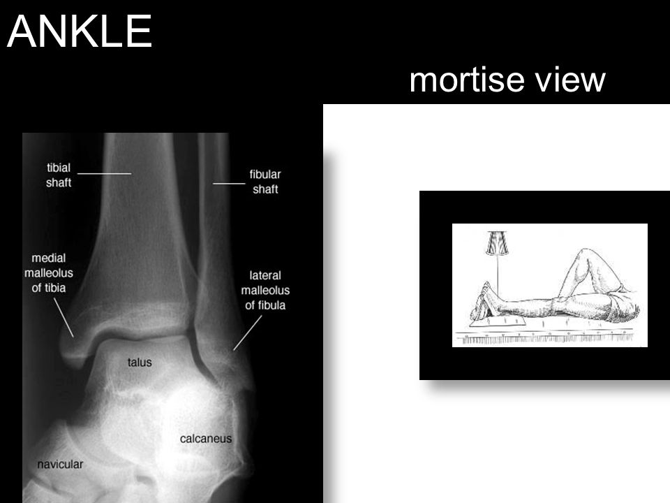 ANKLE mortise view Naka rotate interiorly (view medial and lateral malleoli)