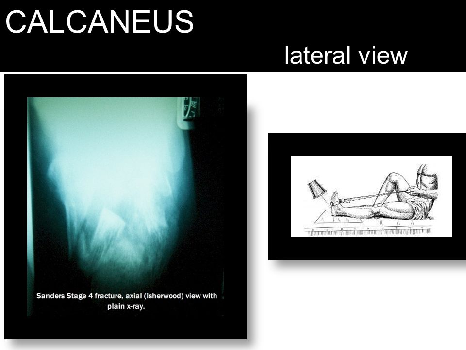 CALCANEUS lateral view