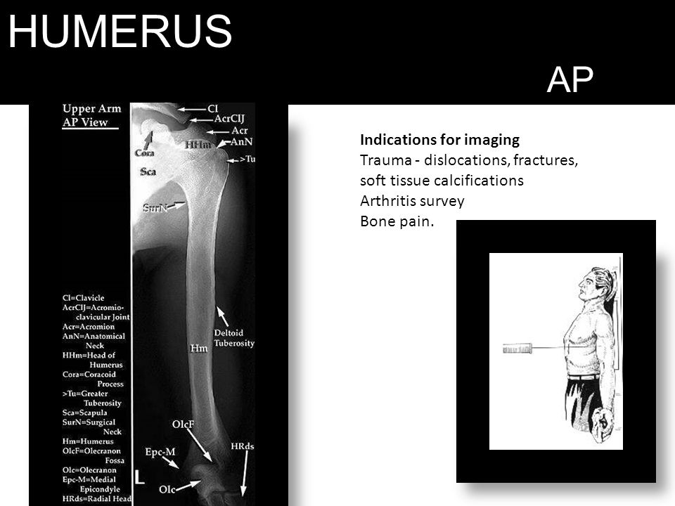 HUMERUS AP Indications for imaging Trauma - dislocations, fractures,