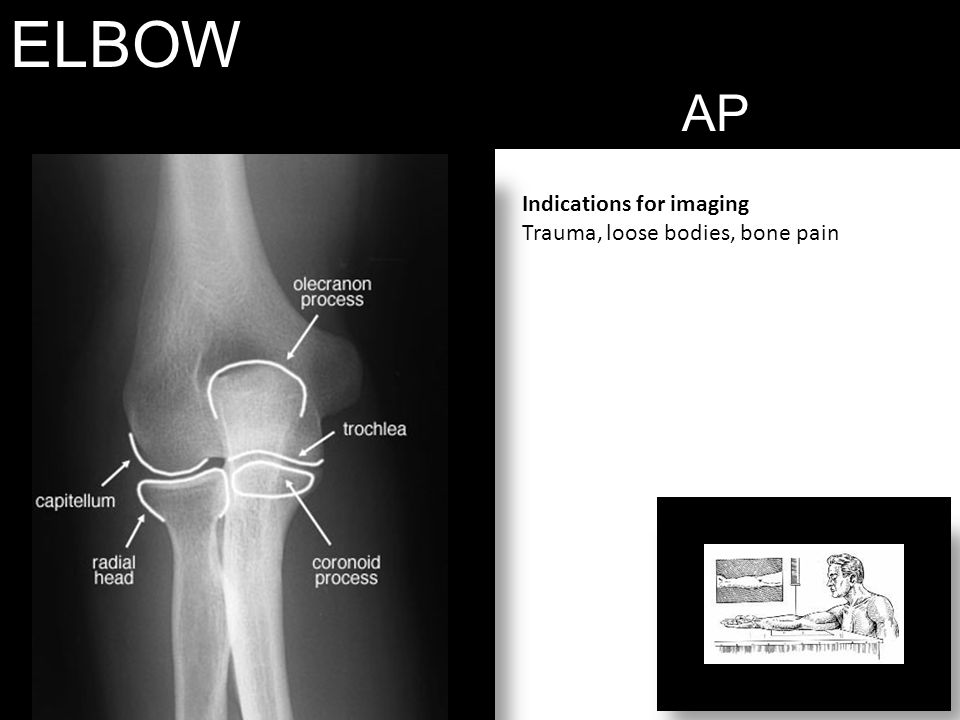 ELBOW AP Indications for imaging Trauma, loose bodies, bone pain