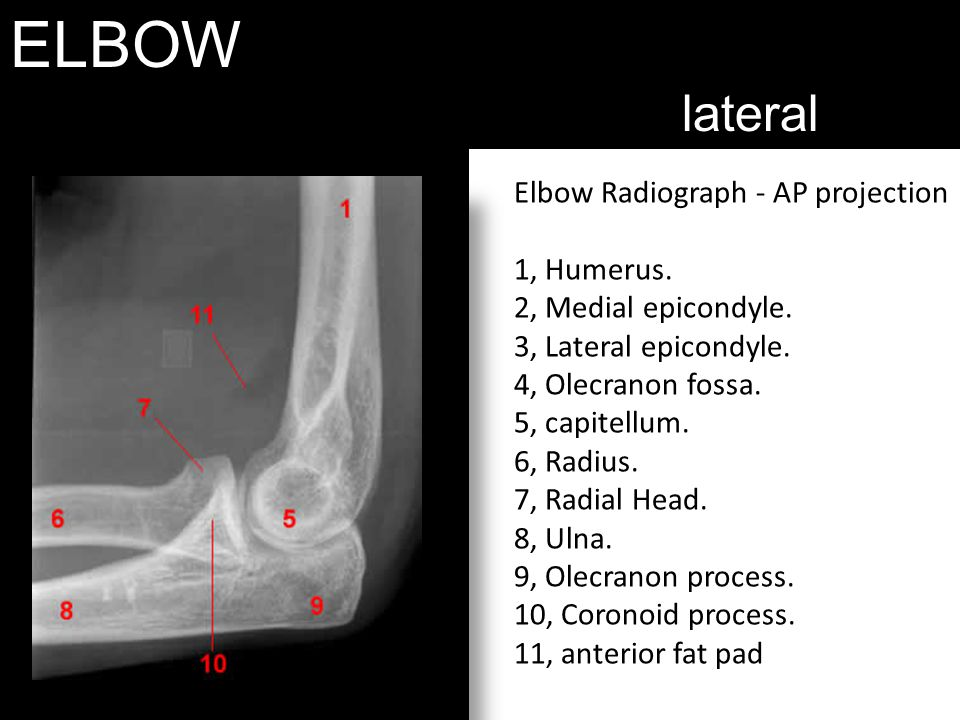 ELBOW lateral Elbow Radiograph - AP projection 1, Humerus.
