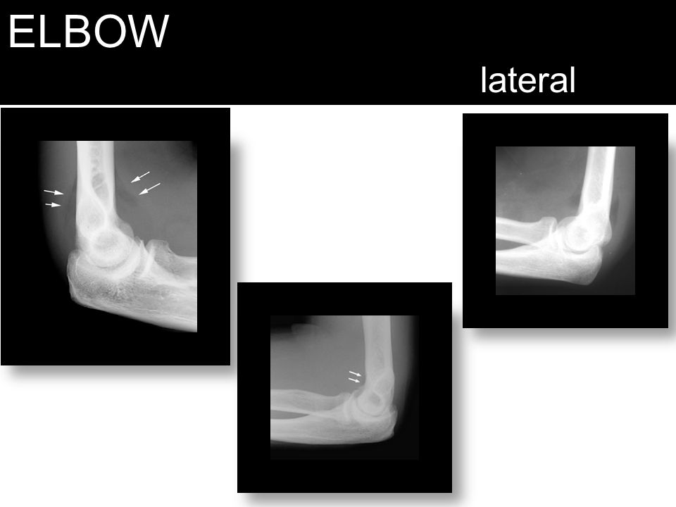ELBOW lateral Middle is normal