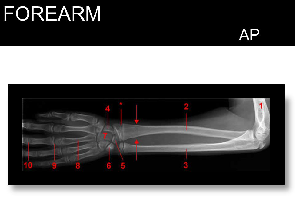 FOREARM AP 1, Humerus. 2, Radius. 3, Ulna. 4 Navicular Bone