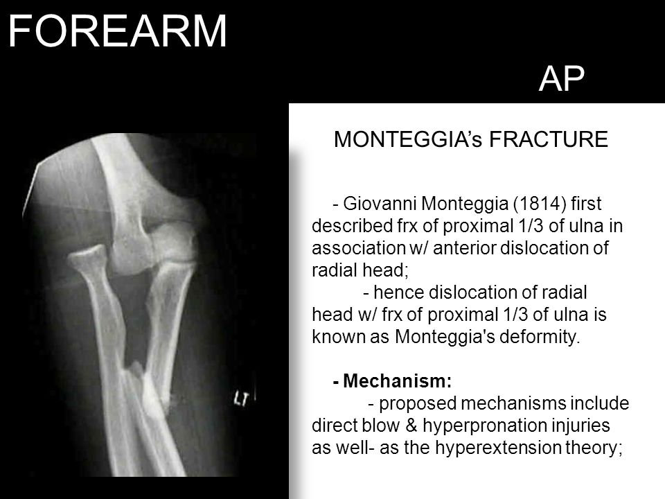 FOREARM AP MONTEGGIA's FRACTURE