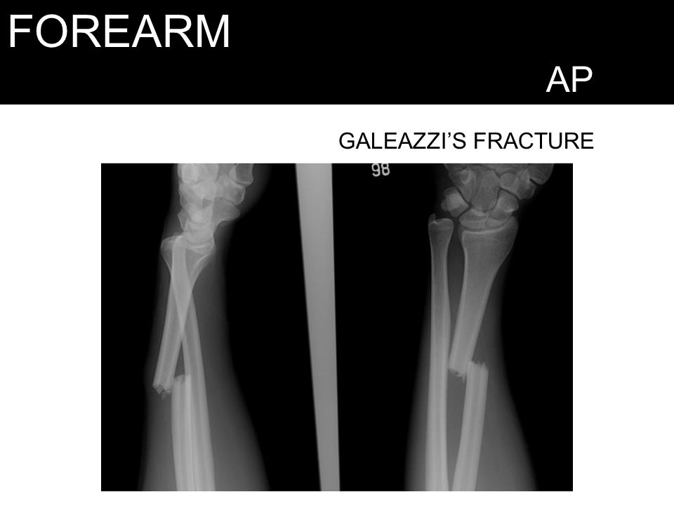FOREARM AP GALEAZZI'S FRACTURE