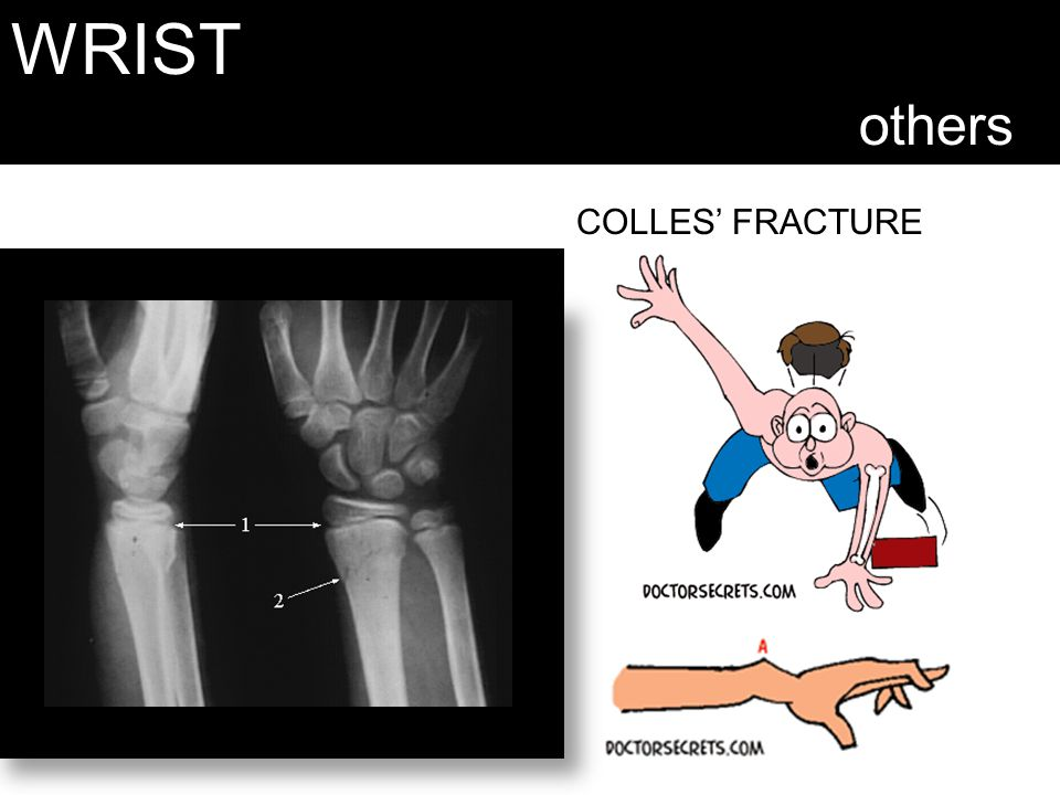 WRIST others COLLES' FRACTURE