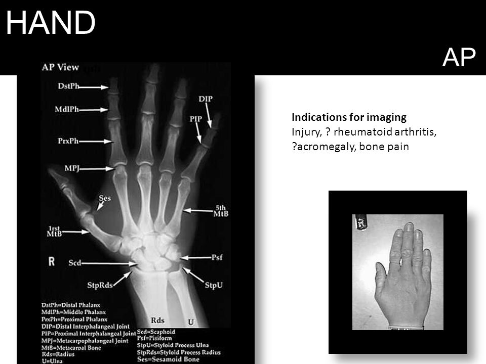 HAND AP Indications for imaging Injury, rheumatoid arthritis, acromegaly, bone pain
