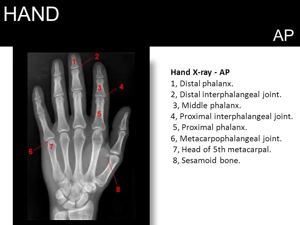 HAND AP Hand X-ray - AP 1, Distal phalanx.