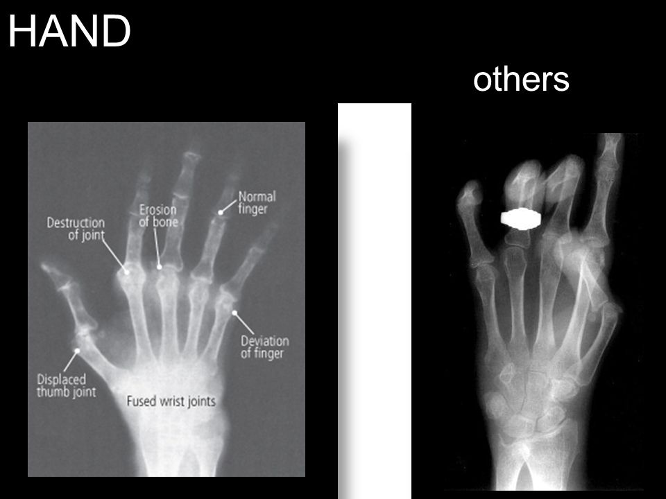 HAND others Left – RA Right - Scleroderma