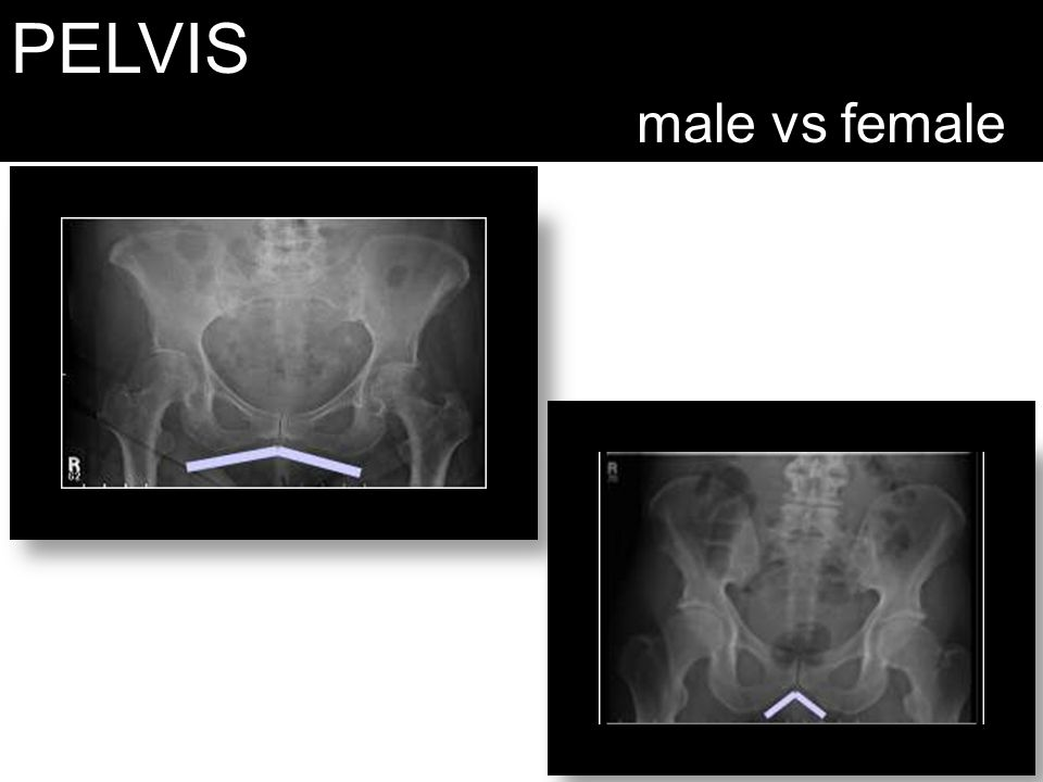 PELVIS male vs female