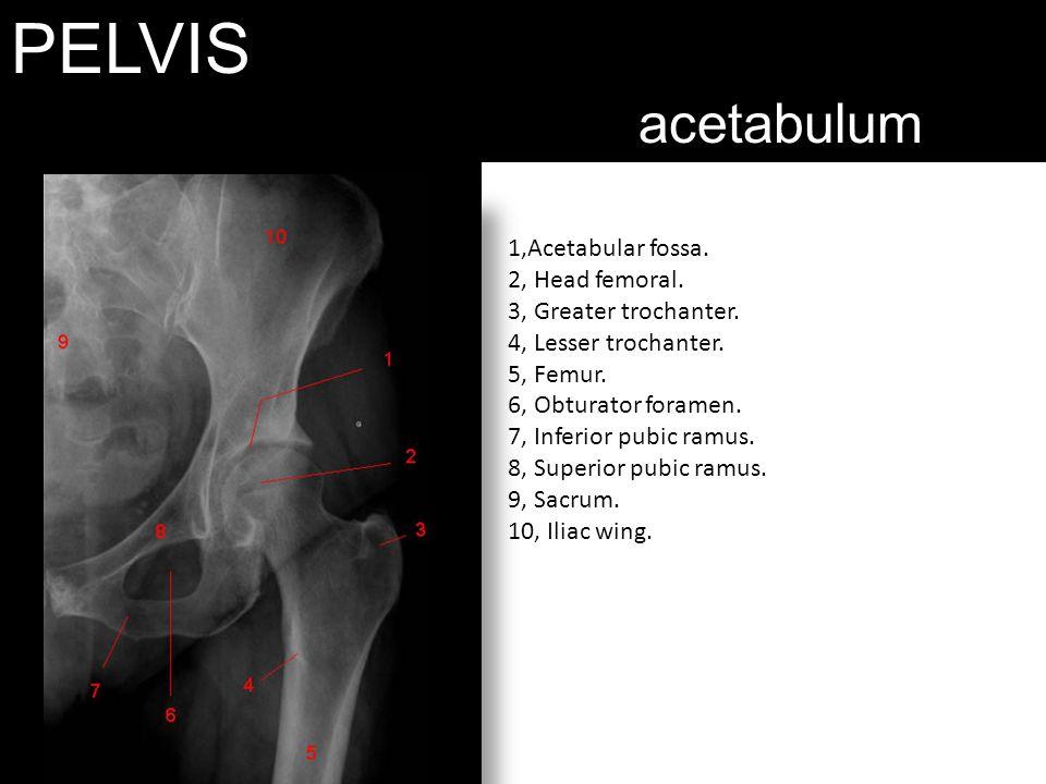 PELVIS acetabulum.