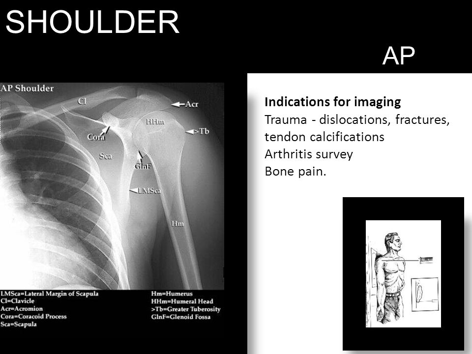 SHOULDER AP. Indications for imaging Trauma - dislocations, fractures, tendon calcifications Arthritis survey Bone pain.