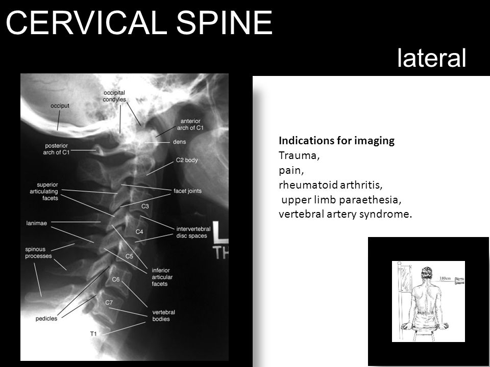CERVICAL SPINE lateral Indications for imaging Trauma, pain,
