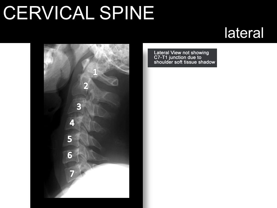 CERVICAL SPINE lateral 1 2 3 4 5 6 7