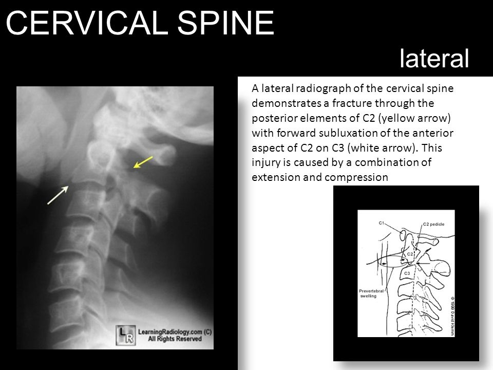 CERVICAL SPINE lateral