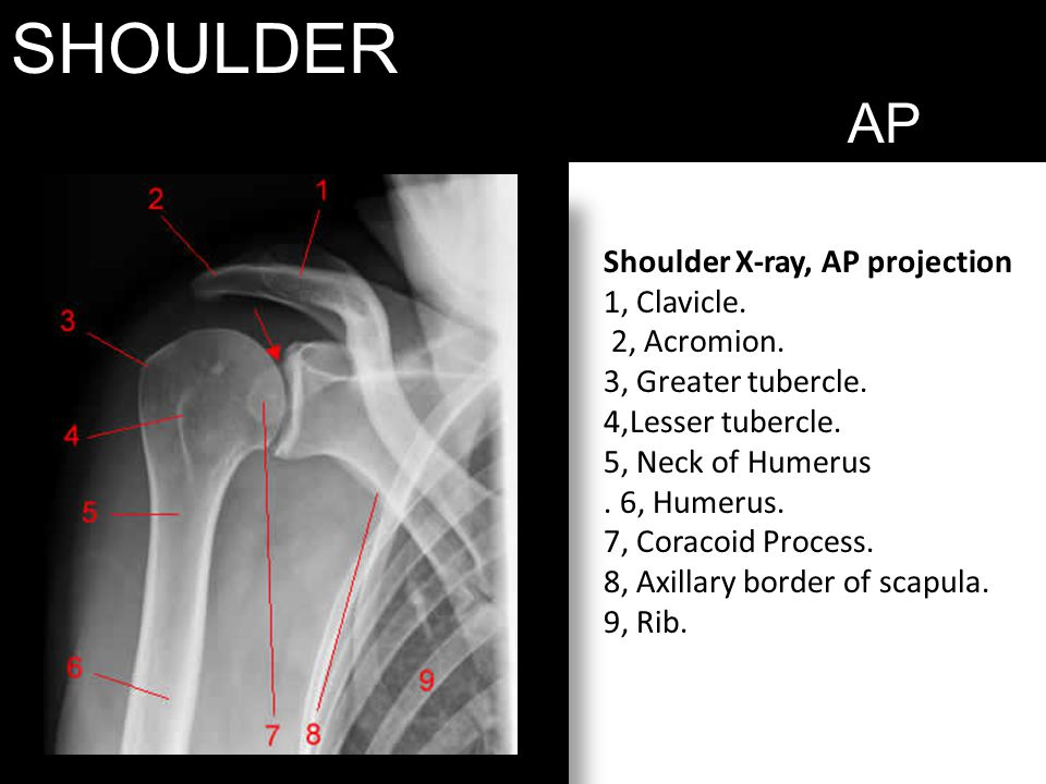 SHOULDER AP Shoulder X-ray, AP projection 1, Clavicle. 2, Acromion.