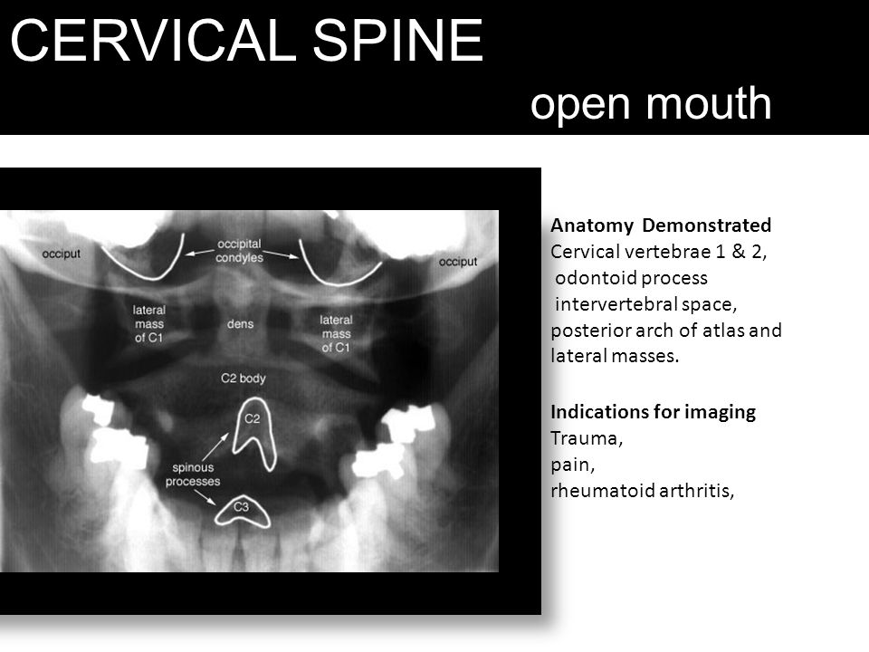 CERVICAL SPINE open mouth