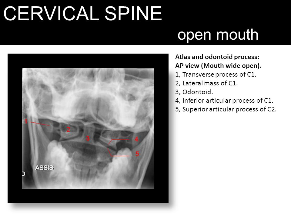CERVICAL SPINE open mouth Atlas and odontoid process: