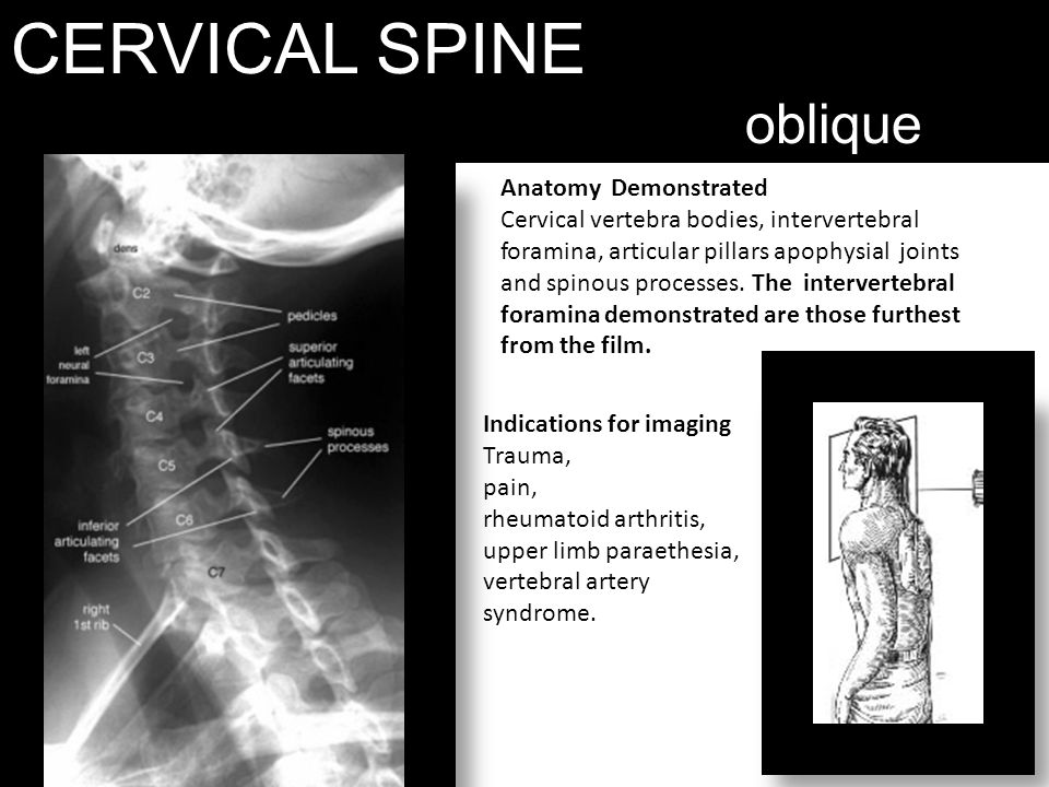 CERVICAL SPINE oblique