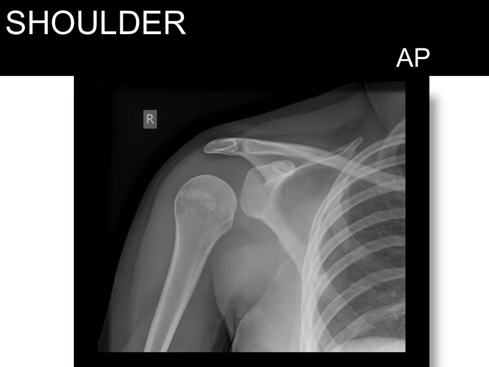 SHOULDER AP Shoulder dislocation