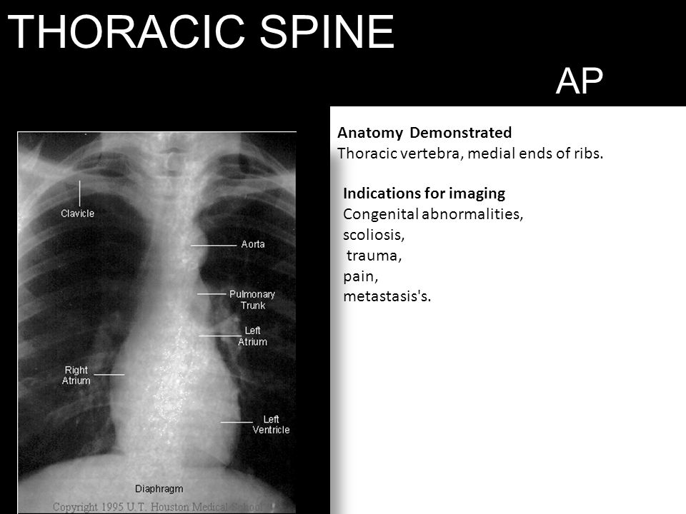 THORACIC SPINE AP AP VIEW