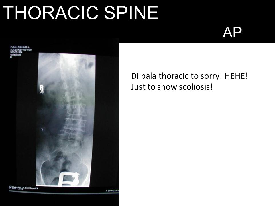 THORACIC SPINE AP Di pala thoracic to sorry! HEHE!