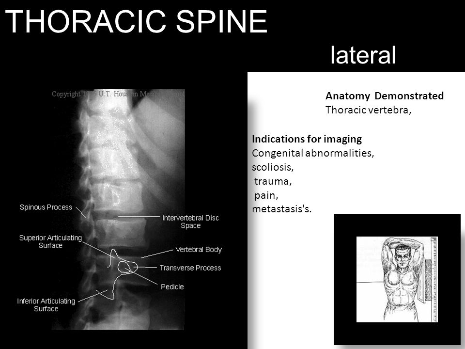 THORACIC SPINE lateral Anatomy Demonstrated Thoracic vertebra,