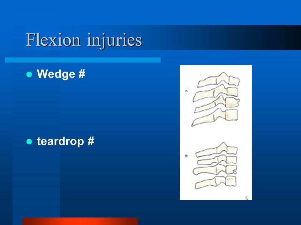 Flexion injuries Wedge # teardrop #