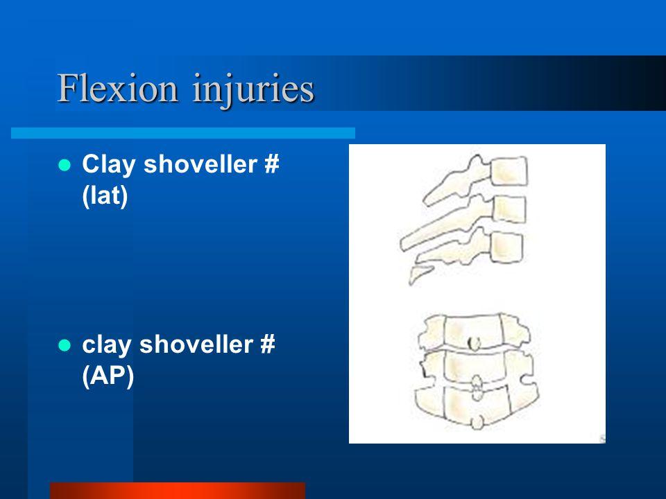 Flexion injuries Clay shoveller # (lat) clay shoveller # (AP)