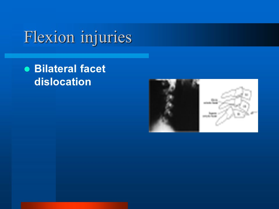 Flexion injuries Bilateral facet dislocation