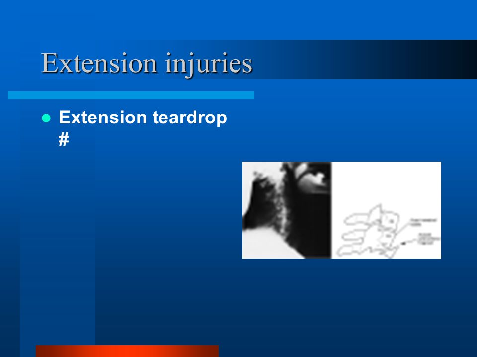 Extension injuries Extension teardrop #