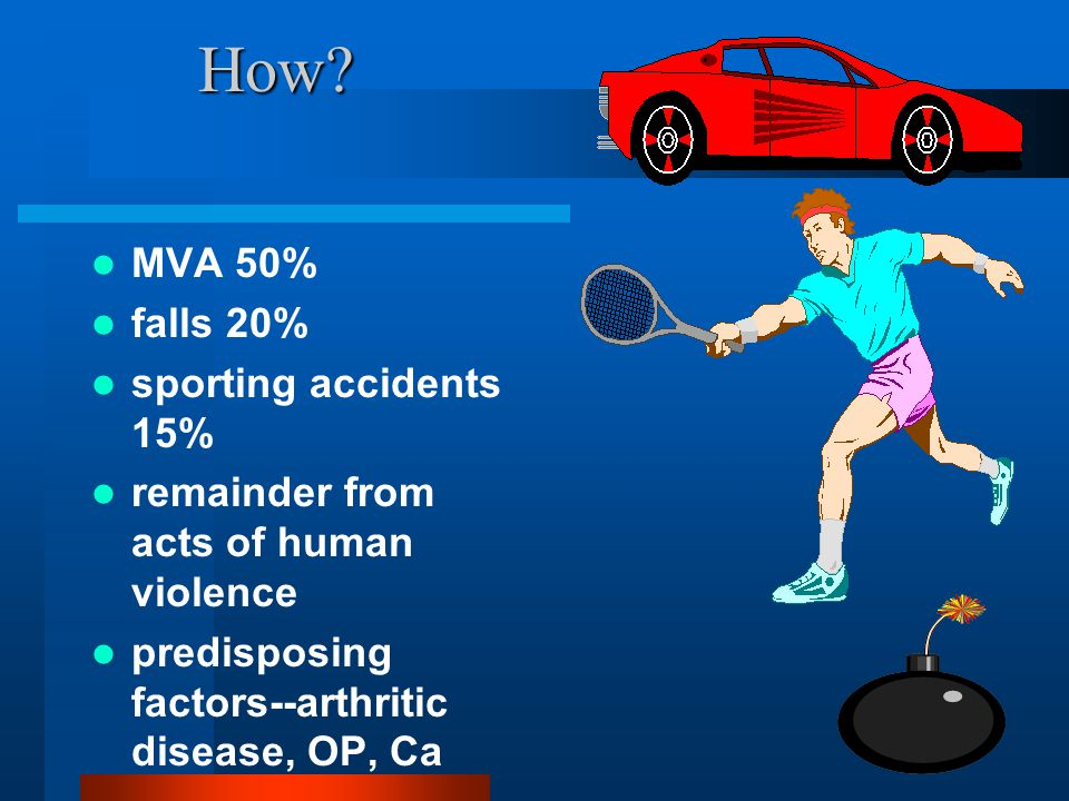 How MVA 50% falls 20% sporting accidents 15%