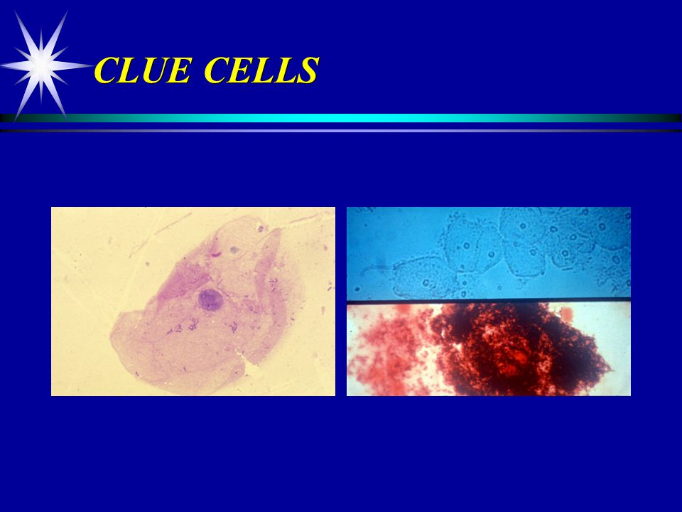 CLUE CELLS