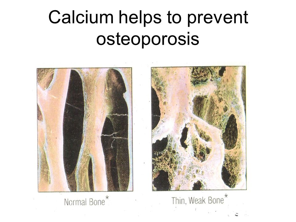 Calcium helps to prevent osteoporosis