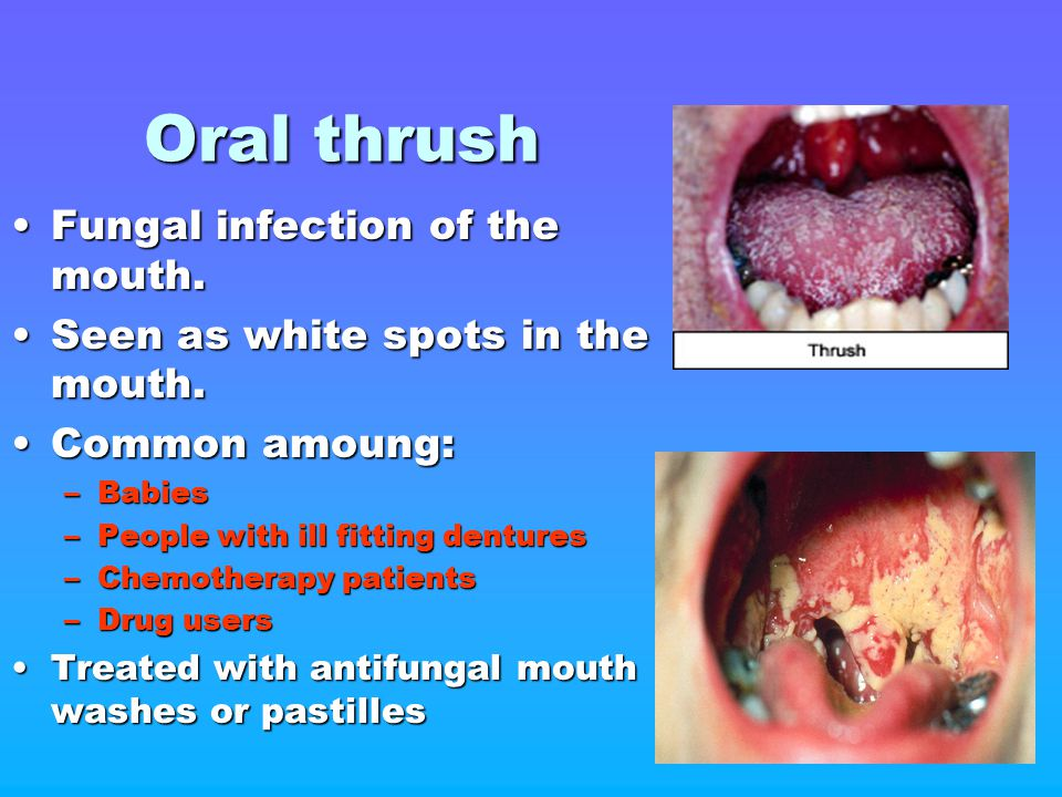 Oral thrush Fungal infection of the mouth.