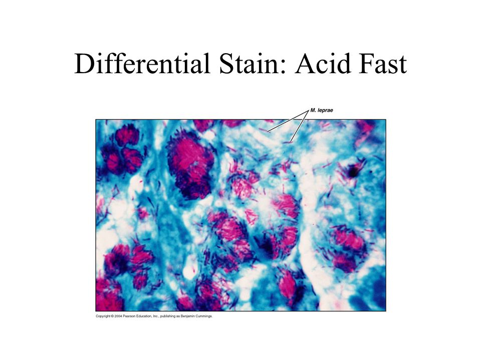 Differential Stain: Acid Fast