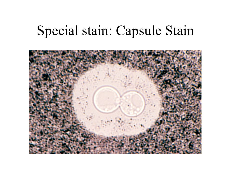 Special stain: Capsule Stain
