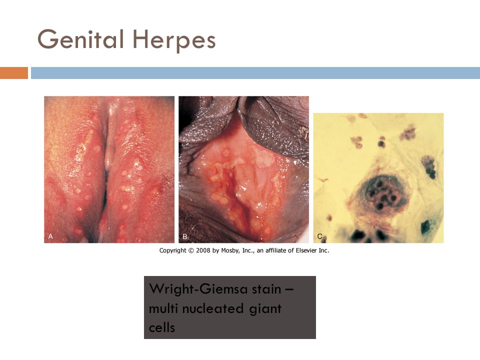 Genital Herpes Wright-Giemsa stain – multi nucleated giant cells