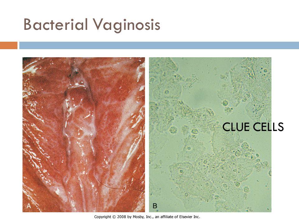 Bacterial Vaginosis CLUE CELLS BV