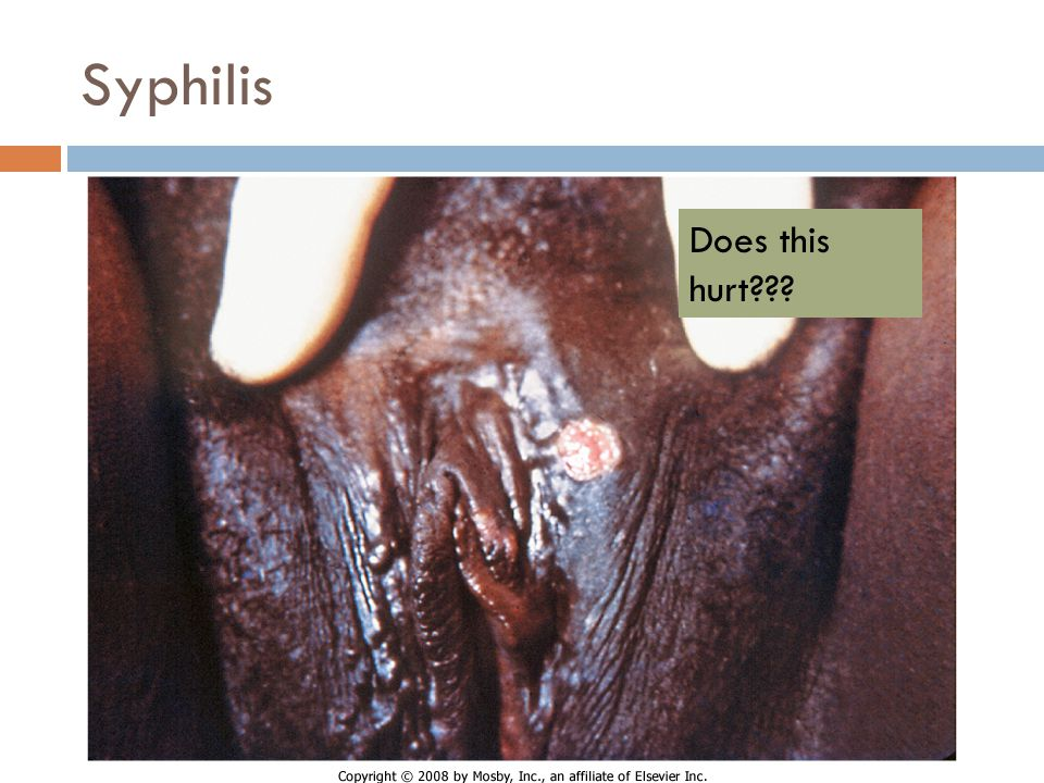Syphilis Does this hurt Chancre - syphilis