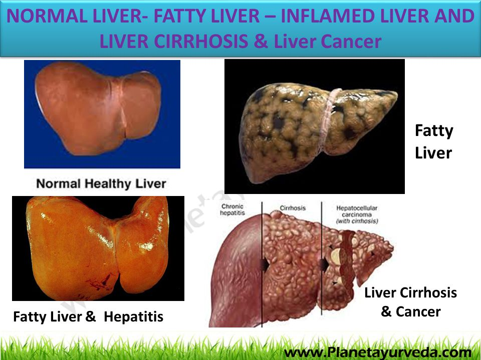 NORMAL LIVER- FATTY LIVER – INFLAMED LIVER AND LIVER CIRRHOSIS & Liver Cancer
